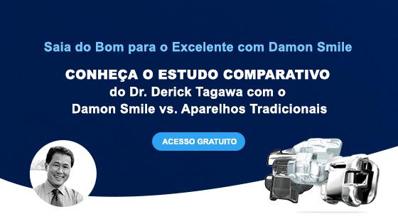estudo comparativo damon smile vs aparelho tradicional